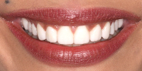 Closeup Bri's Smile After NW Dental