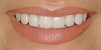 Closeup Claudia's Smile After NW Dental