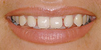 Closeup Claudia's Smile Before NW Dental