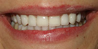 Closeup Jaclynn's Smile After NW Dental