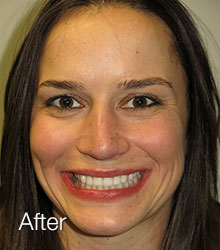 Jaclynn's Smile After NW Dental