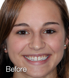 Madison's Teeth Before NW Dental