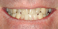 Teeth Misalignment Before NW Dental